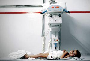 Radiografia-bambino